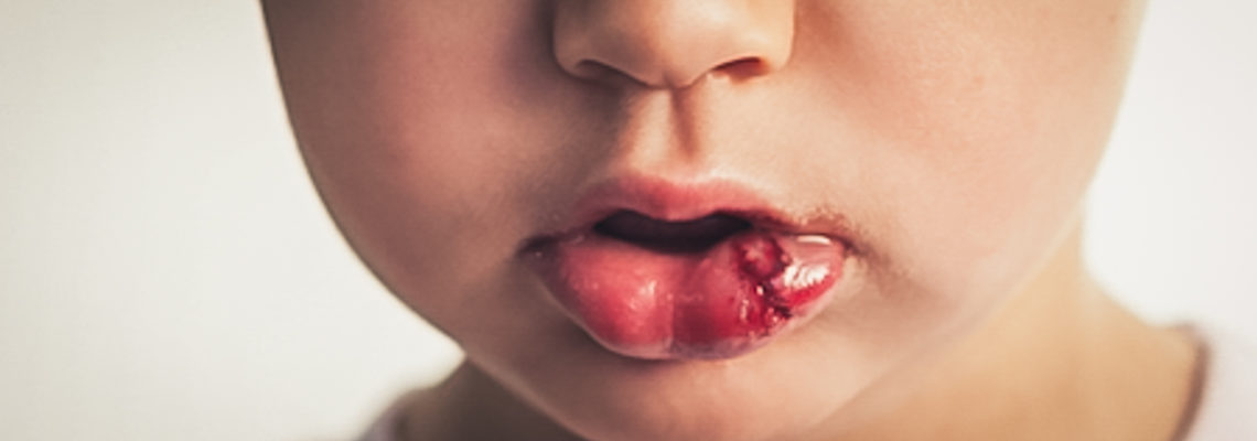 Lip Injury